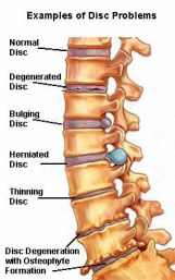 herniated discs after an auto accident injury